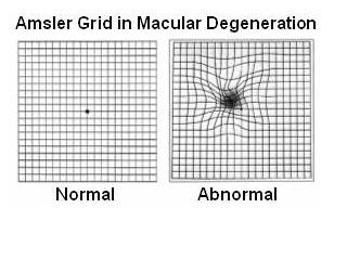 grid for macular degeneration