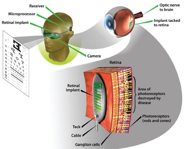 macular degeneration research artificial retina diagram