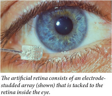 macular degeneration research artificial retina